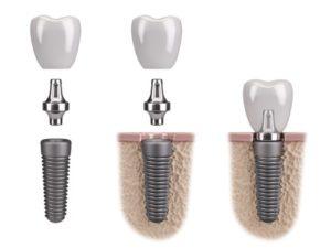 Skizze zum Aufbau von Zahnimplantaten