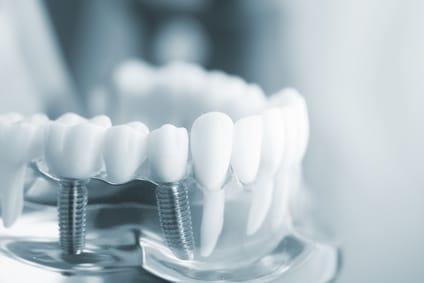 Bild von zwei Zahnimplantaten