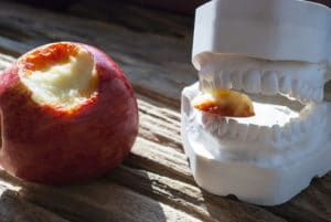 Blutendes Zahnfleisch durch Parodontitis
