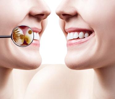 Nahaufnahme auf Bakterien, die nur mit einer professionellen Zahnreinigung entfernt werden können